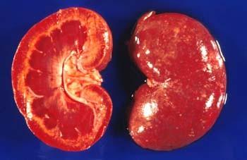 proteinpulver farligt för njurarna